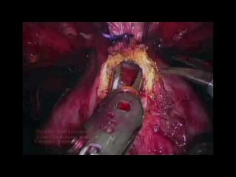 Koprive liječenje prostatitis