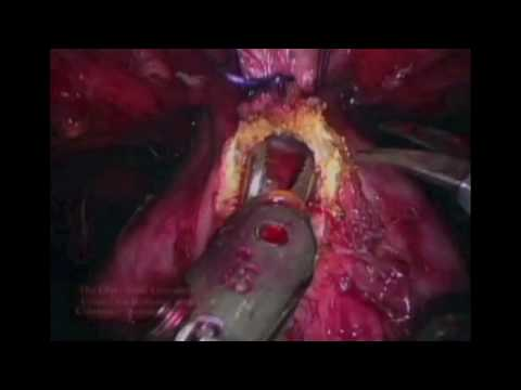 Hepatito prostatos liaukos