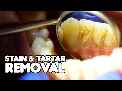 Dental Cleaning EXPLAINED | Stain & Tartar Removal