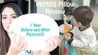 BABY FLAT HEAD | MIMOS PILLOW REVIEW | 1 YEAR AFTER WITH PICTURES!!