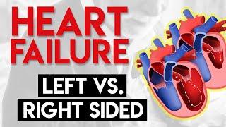 Left vs Right Heart Failure | Heart Failure (Part 3)
