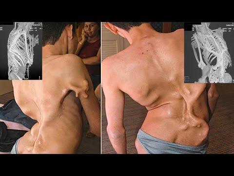 Коленный сустав лечение уколы