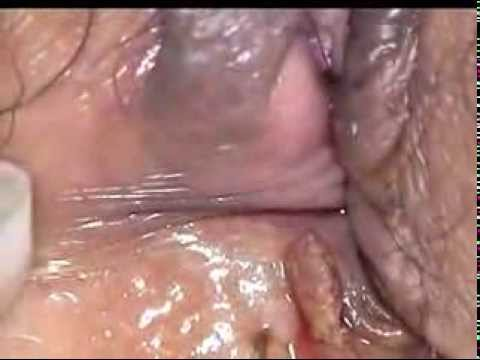 Wart on face or skin cancer