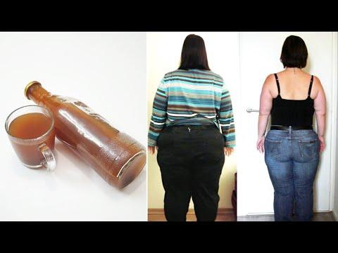 Padėti numesti svorio nhs