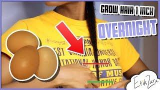 OVERNIGHT HAIR GROWTH! - 1 INCH - 12 hours! | EfikZara Growth Hacks