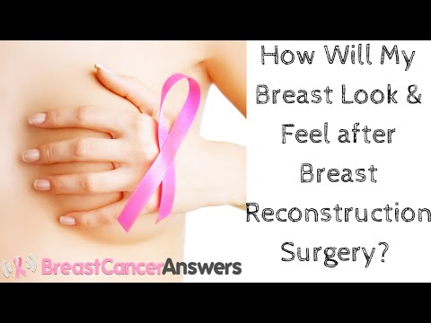 Lalaki breast surgery