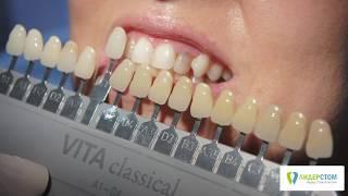 Скидка на отбеливание зубов ZOOM 4 (купон)