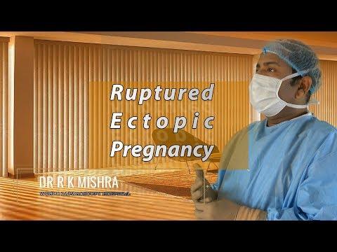 Ciąża ektopowa- Dr R K MISHRA