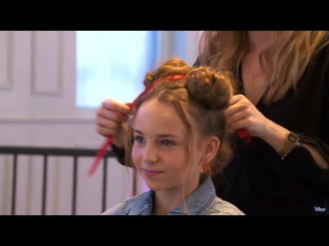 Przyczyny wypadania włosów u kobiet na czole