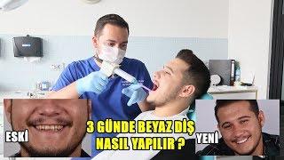 3 GÜNDE DİŞLERİM NASIL BEYAZLADI !