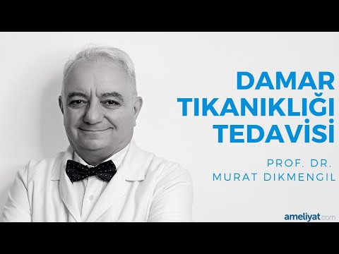 Damar Tıkanıklığı Tedavisi (Prof. Dr. Murat Dikmengil)