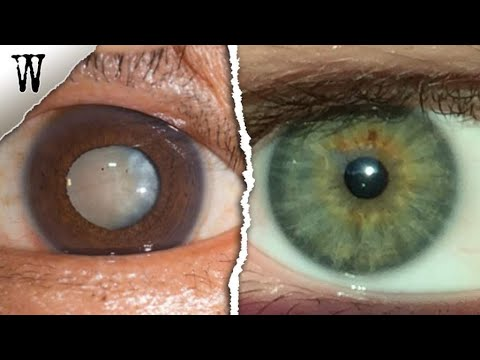 Signs of EYE COLOR ANCESTRY You Shouldn't Ignore