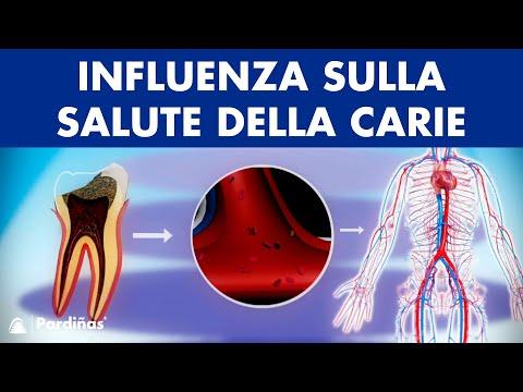 Toraciche ginnastica trattamento osteocondrosi