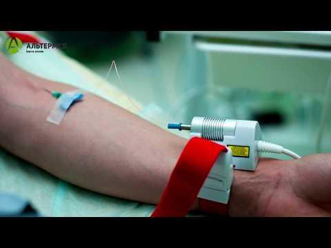 Кондиломы в горле лечение