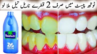 How To Whiten Teeth In 2 Minutes Free Video Search Site Findclip