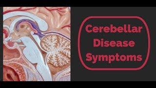 Cerebellar Disease Symptoms