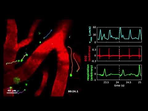 Profili për pacient me hipertension