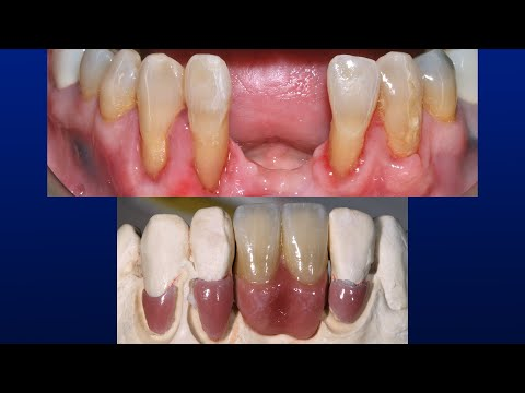 No Prep Gingival Veneers | Best Conservative Solution