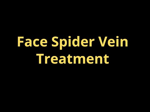 Nuovi metodi di trattamento di varicosity di gambe