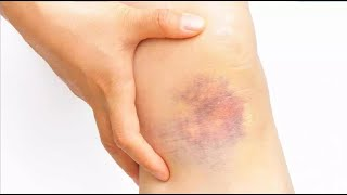 how to get rid of bruises fast and easy