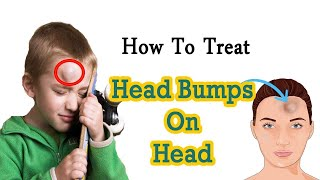How to Get Rid of Head Bump Naturally at Home    Home Remedies for Head Bump    Goose Egg