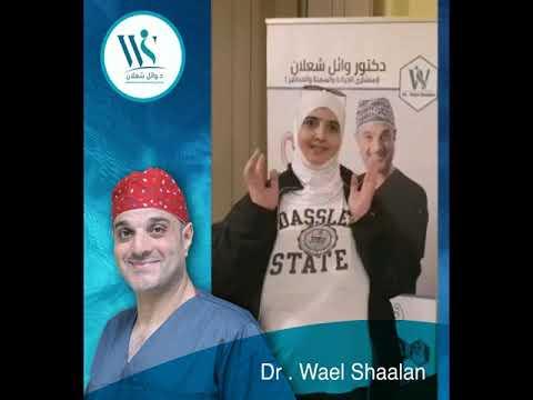 غصون من سوريا بتحكي تجرتبها بعد عملية تكميم المعدة مع دكتور وائل شعلان