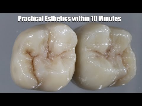How to Create Practical, Simple Esthetics for Maxillary Molars | Dental Lab Education