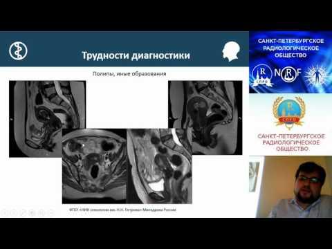 Рак предстательной железы и половая жизнь