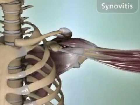 Bursitis bokaízület kezelése