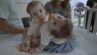 Newswise:Video Embedded michigan-medicine-team-separates-conjoined-twins-at-c-s-mott-children-s-hospital