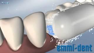 Ultraschall-Zahnbürste Zahnpflege mit Ultraschall - Weisse Zähne mit Ultraschall-Zahnbürste