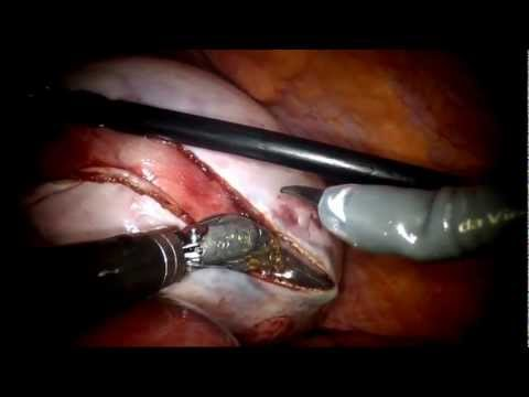 daVinci Cystectomy on Pregnant Patient