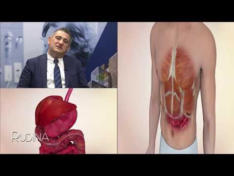 Hulumtimi në vazhdim në hipertension