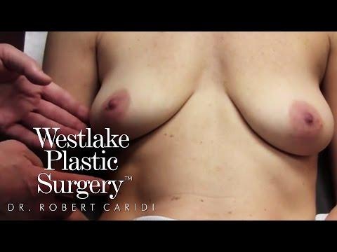 Procedure Video: BAR Procedure