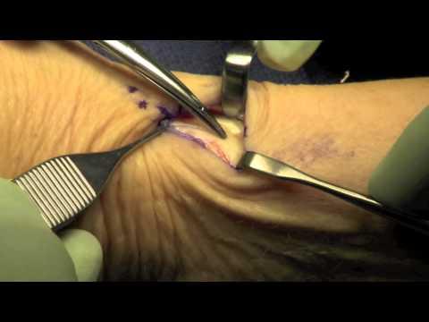 chirurgiczne uwolnienie ścięgien pierwszego przedziału prostowników - choroba De Quervaina