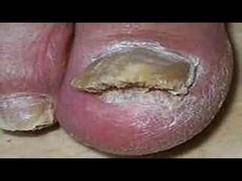 Как лечить грибок ногтей на ногах Причины, признаки, лечение ногтевого  грибка