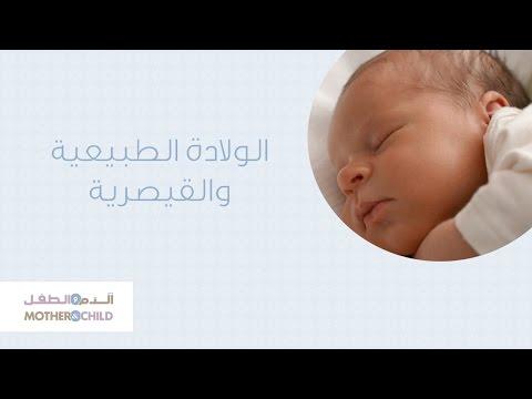 الولادة الطبيعية والقيصرية