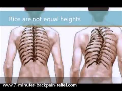 Se la curvatura di spina dorsale ad adulti può esser corretta