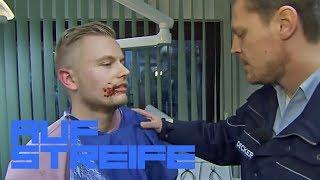 Angst vorm Zahnarzt? Sonst ist Sascha doch mutig! | Auf Streife | SAT.1 TV
