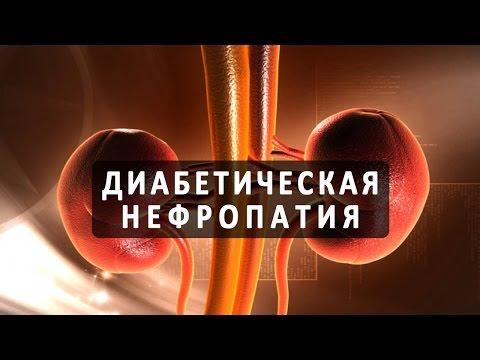 Инулин при диабете 1 типа