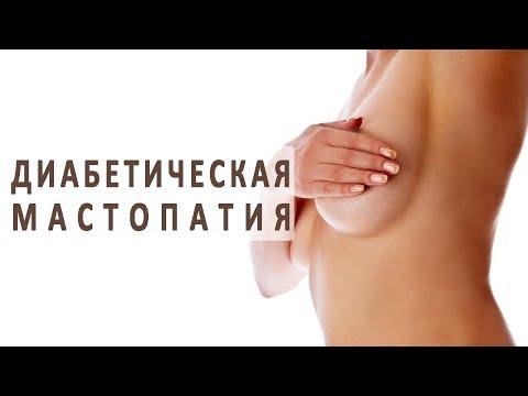 Гормонозависимый рак предстательной железы что это такое