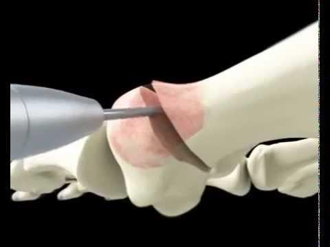 Шишки на пальце ноги у ребенка