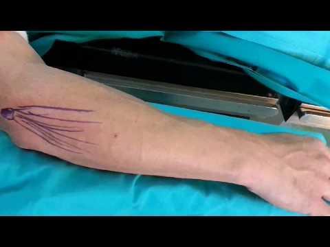 Quale medico per il trattamento di risonanza magnetica del ginocchio