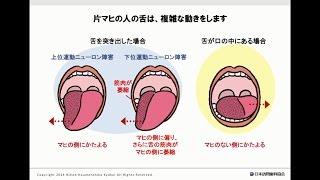 マヒの人の舌の観察方法
