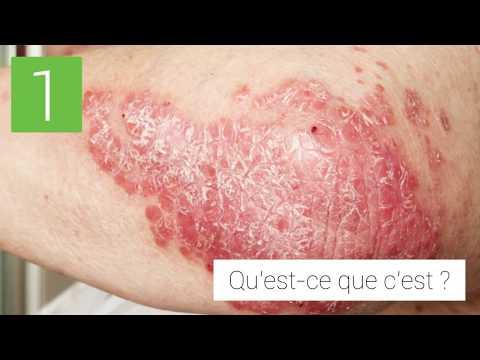 Vörös foltok kezelése a testen