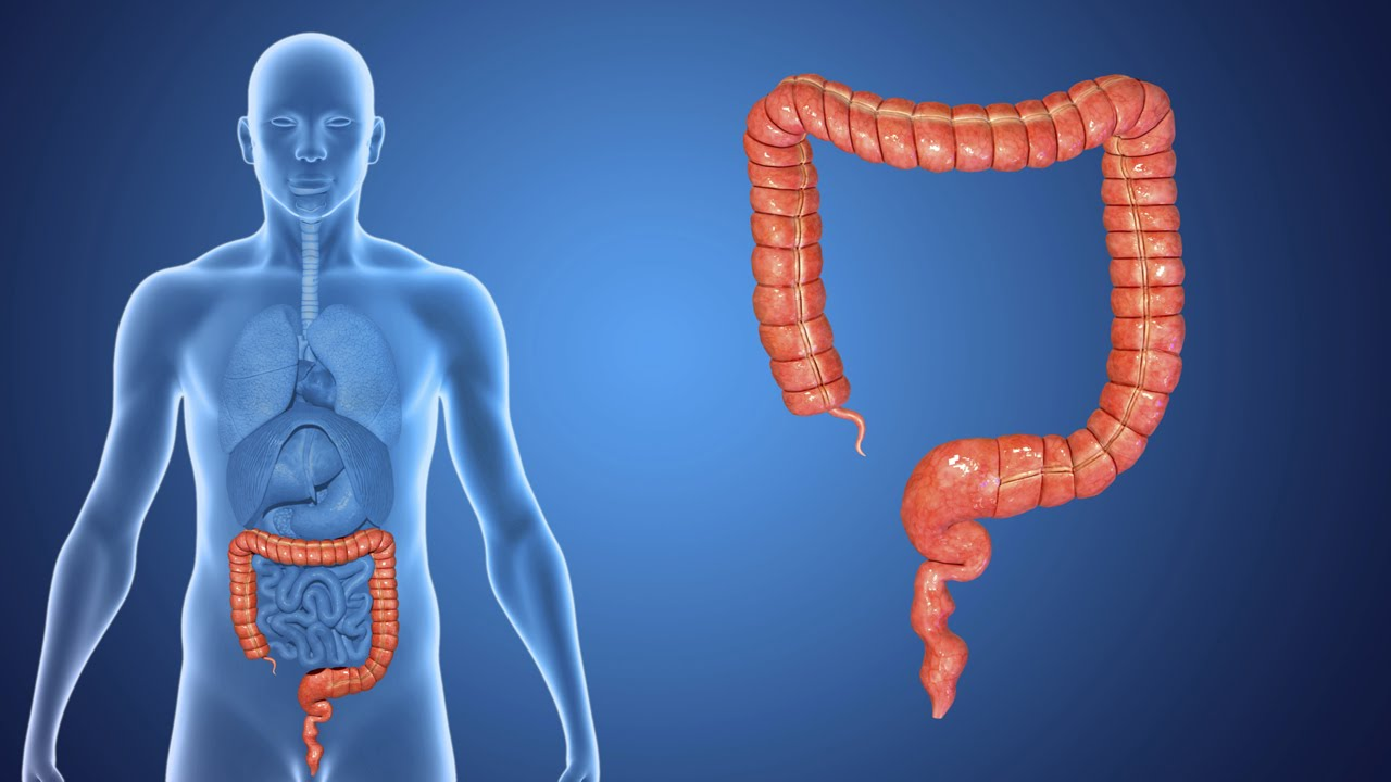 Types of Colorectal Cancer | Stanford Health Care