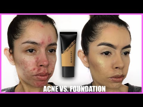 ACNE VS. FOUNDATION: MORPHE FLUIDITY REVIEW | Rocio Ceja