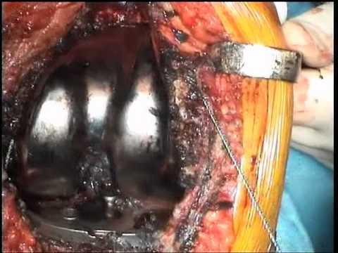 Danneggiamento della spalla labbra fibrose come guarire