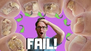 20 Ways To Get Rid of Toenail Fungus (Proven CURE & Home Remedies)