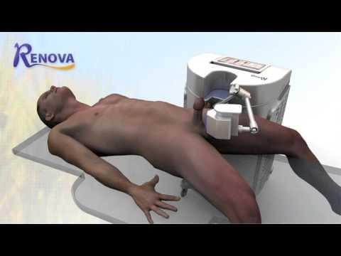 Ervas prostatite para tratamento